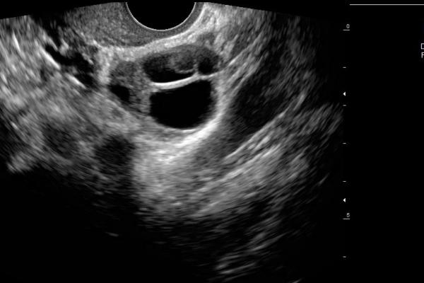 Gyneco_14